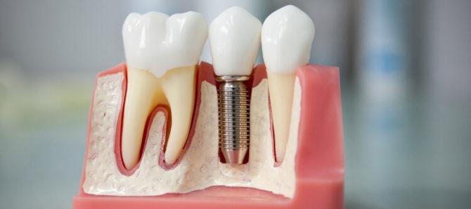 Зубные имплантанты и обычные зубы