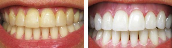 Зубы до и после чистки пастой с содой