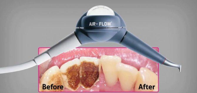 Зубы до и после чистки зубов по технологии Air Flow