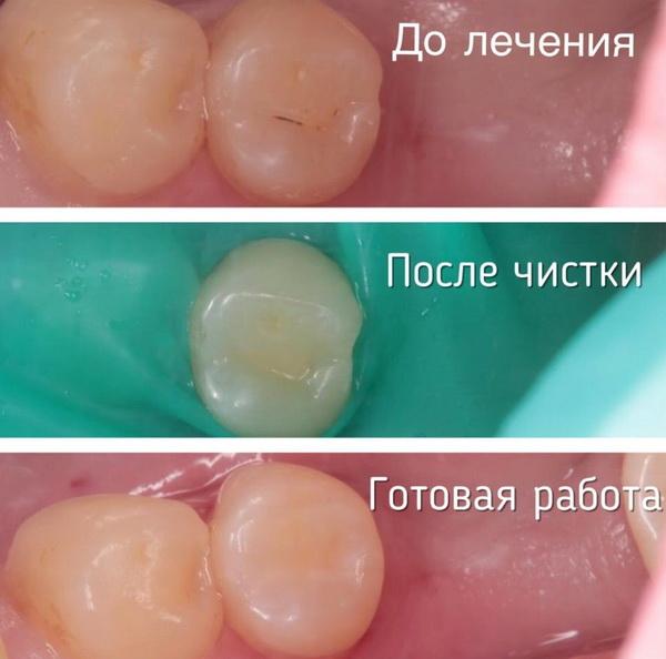 Зубы до и после герметизации фиссур