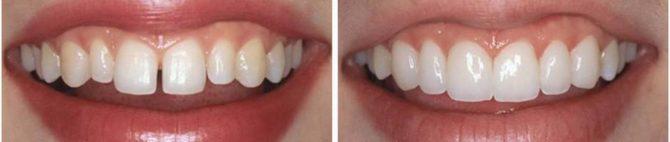 Зубы до и после художественной реставрации