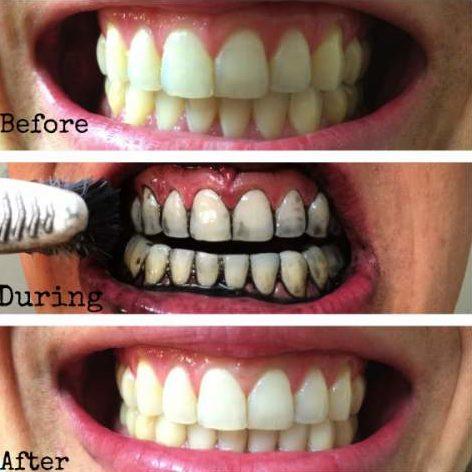 Зубы до и после отбеливания активированным углем
