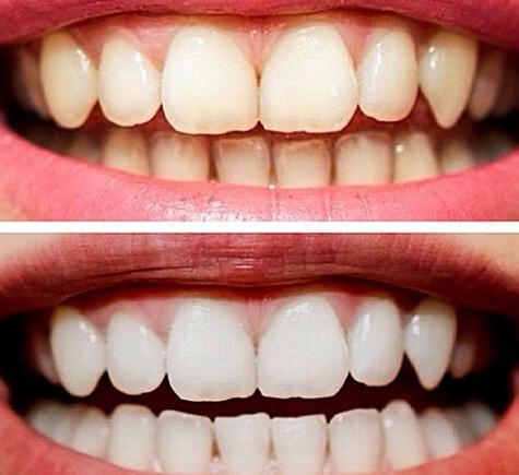 Зубы до и после отбеливания эфирным маслом чайного дерева