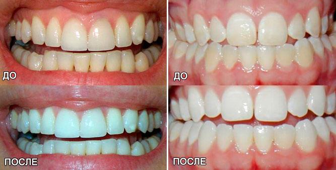 Зубы до и после отбеливания перекисью водорода