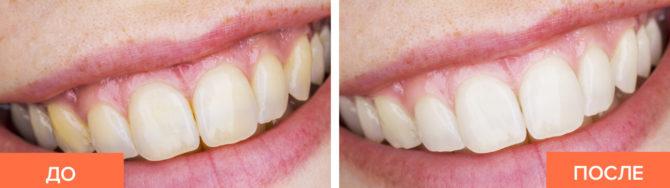 Зубы до и после отбеливания пищевой содой