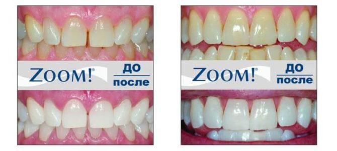 Зубы до и после отбеливания по технологии ZOOM