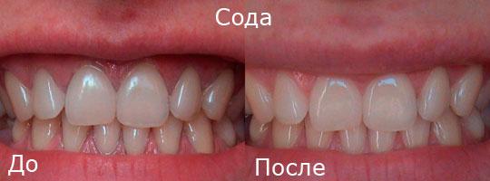 Зубы до и после отбеливания содой