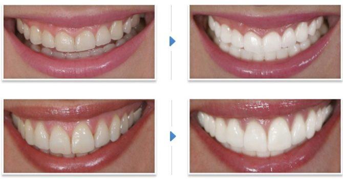 Зубы до и после отбеливания в стоматологии