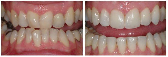 Зубы до и после применения кап