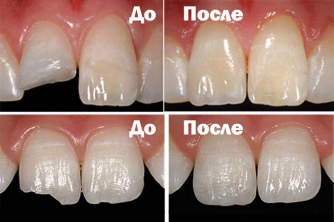 Зубы до и после реставрации композитными материалами