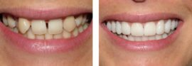 Зубы до и после реставрации винирами
