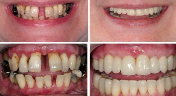 Зубы до и после шинирования металлокерамическими коронками
