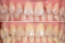 Зубы до и после установки фарфоровых виниров