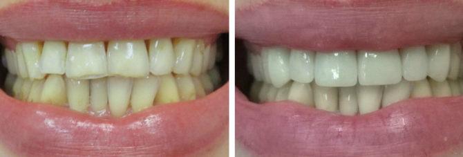 Зубы до и после установки керамических коронок