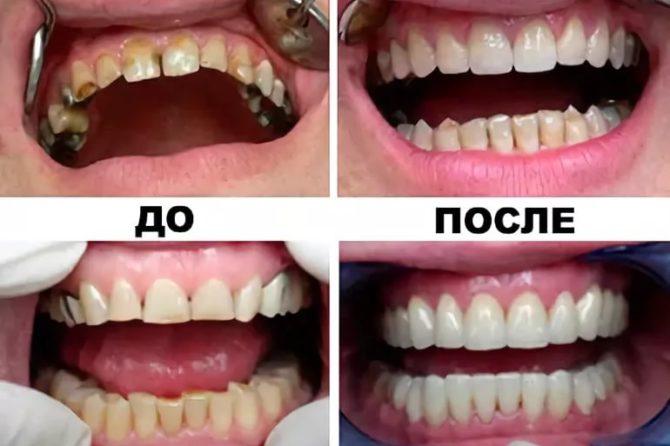 Зубы до и после установки металлокерамических коронок