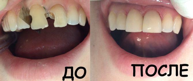 Зубы до и после установки световых пломб
