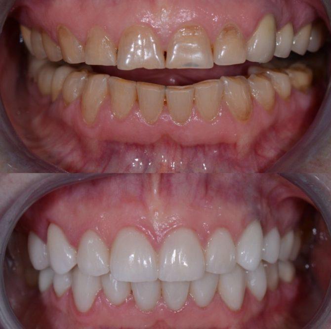 Зубы до и после установки циркониевых коронок