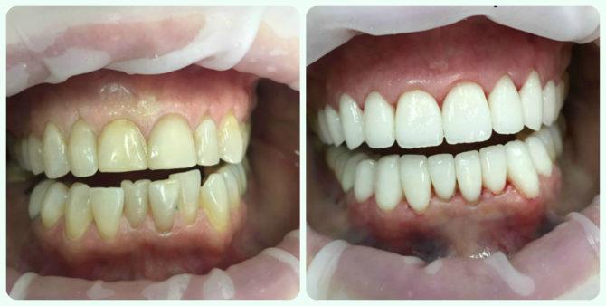 Зубы до и после установки циркониевых виниров