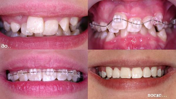 Зубы до и после выпрямления сапфировыми брекетами