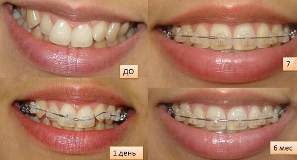 Зубы до и после выравнивания керамическими брекетами