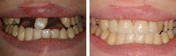 Зубы до после установки бюгельного протеза
