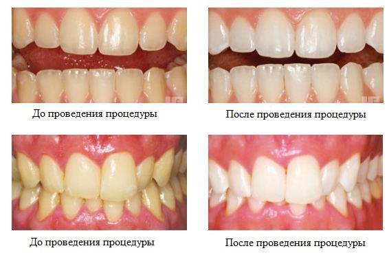 Зубы после отбеливания смесью лимона, соды и пероксида