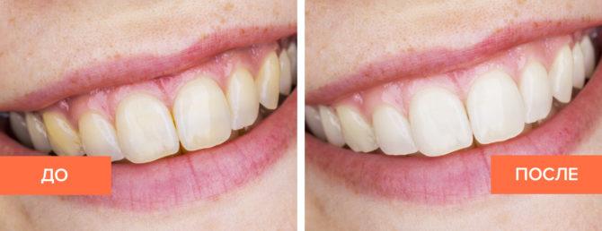 Зубы после отбеливания содой и пероксидом