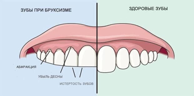 Зубы при бруксизме и здоровые зубы