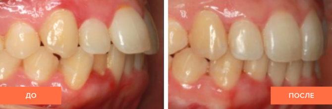 Зубы ребенка до и после применения кап