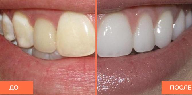 Зубы с флюорозом до и после отбеливания