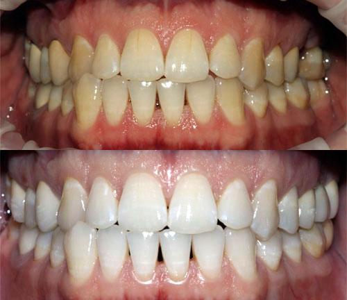 Зубы с кофейным налетом и после осветления эмали по технологии «ЗУМ»