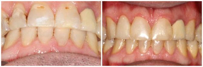 Зубы с поверхностным прикорневым кариесом до и после лечения
