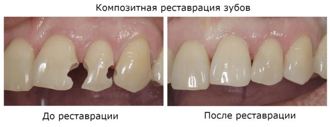 Зубы со сколами до и после композитной реставрации