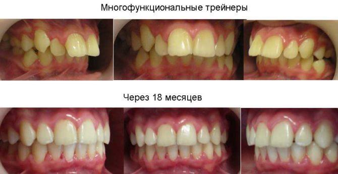 Зубы взрослого пациента до и после применения трейнеров