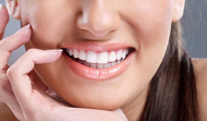Белоснежные зубы после отбеливания в домашних условиях