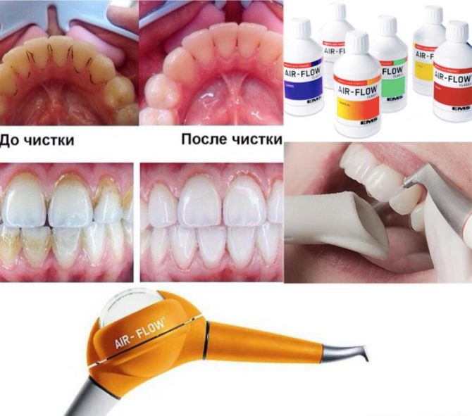 Как снизить затраты на стоматолога ухаживая за полостью рта в домашних условиях