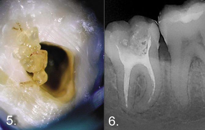 Дентикли в пульпе на рентгеновском снимке