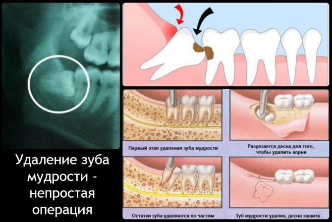 Этапы сложного удаления зуба мудрости