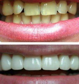 Фото зубов до и после установки винир