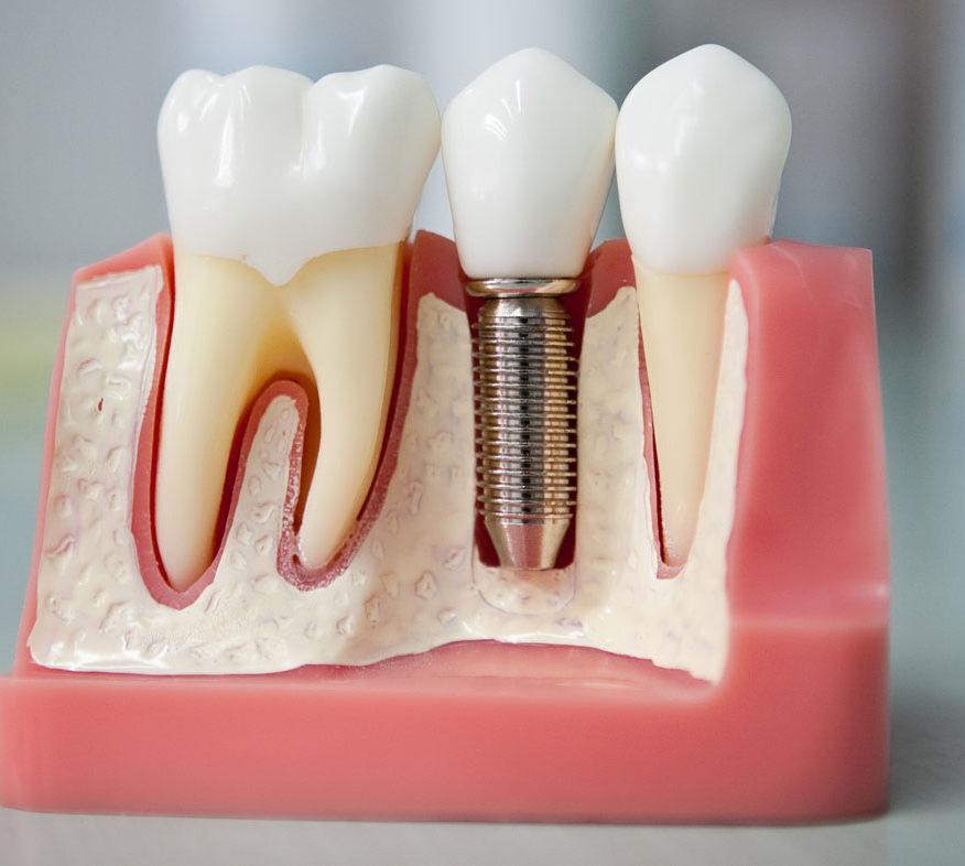 Импланты зубов в твери цены
