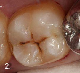 Изображение пульпита на зубах