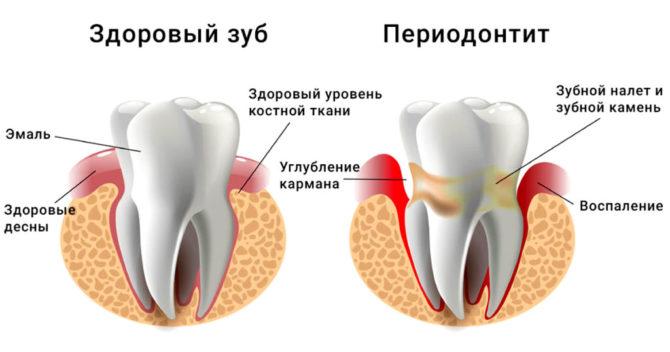 Как выглядит периодонтит и здоровый зуб
