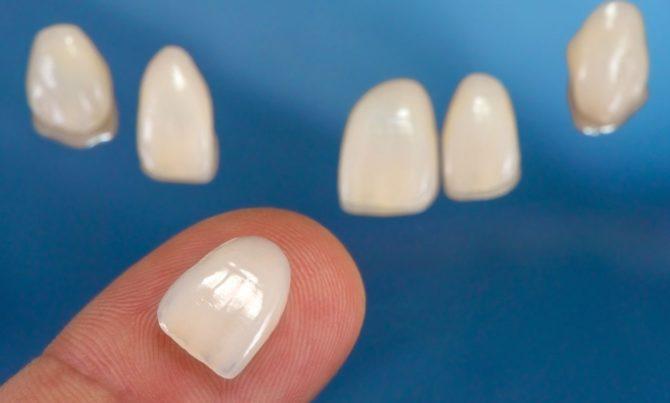 Как выглядят виниры на зубы