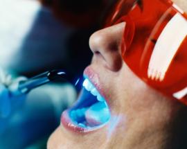 Лазерная чистка зубов