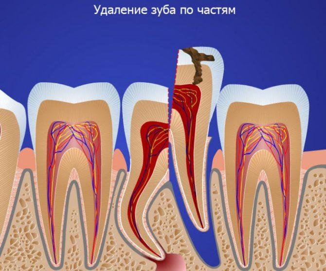 Лазерное удаление зуба мудрости по частям