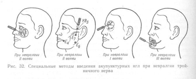 Методы введения акупунктурных игл при невралгии тройничного нерва