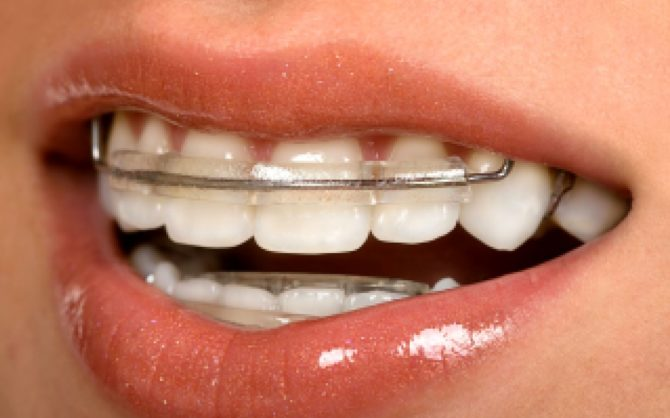 Пластины для выравнивания на зубах