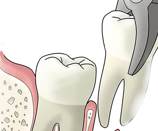 Удаление зуба мудрости курск