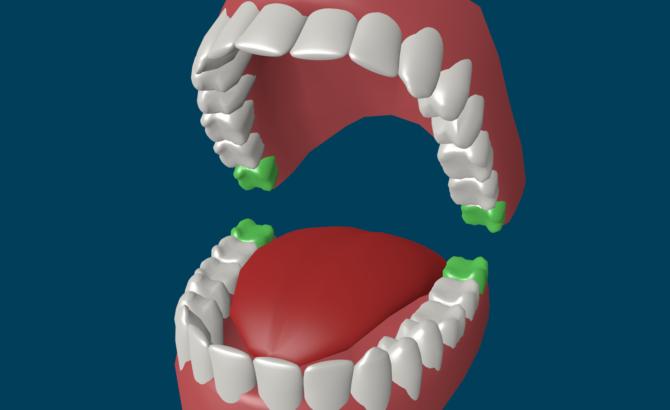 Расположение зуба мудрости в зубном ряду