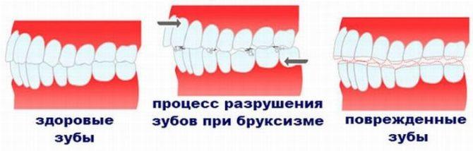 Разрушение зубов при бруксизме